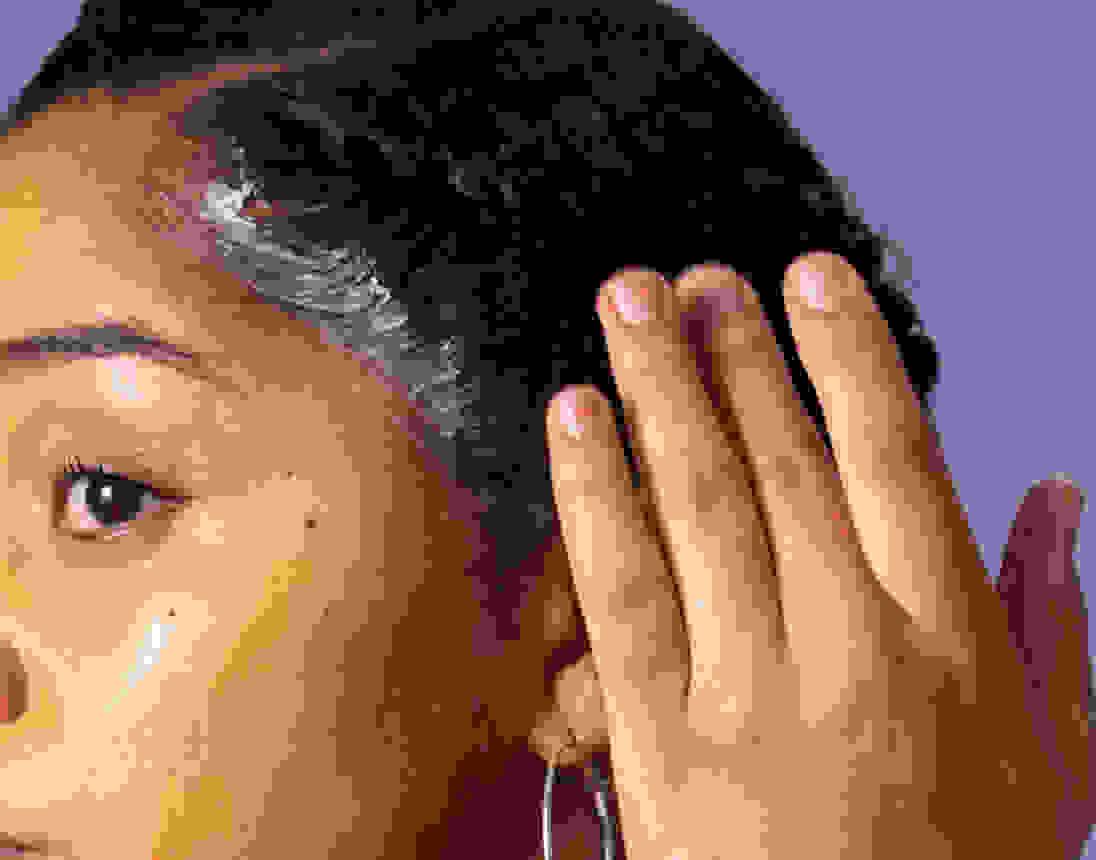 Image card - Scalp Treatments